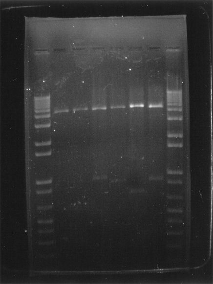 dna_agarose_gel_electrophor